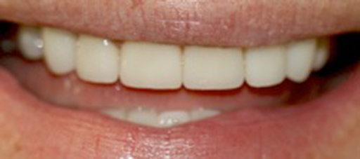 After Cosmetic Dentistry